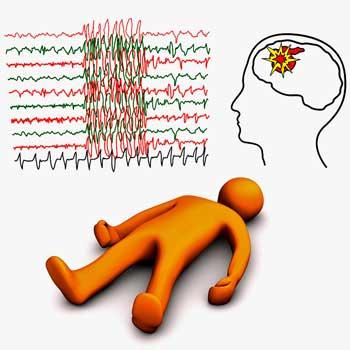 Apoplectic-And-Epileptic-Stroke.jpg