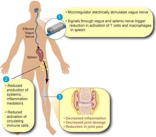 Setpoint- Neuromodulation.jpg