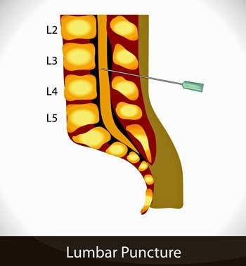 umbar-puncture-23626055.jpg