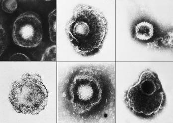 herpesvirues