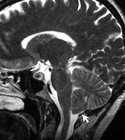 MRI - Chiari malformation