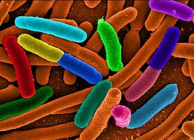 e coli image