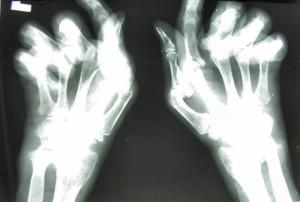athritis damage