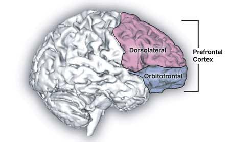 Shape Shifting Pain: How Chronic Pain Turns the Brain More 'Emotional'