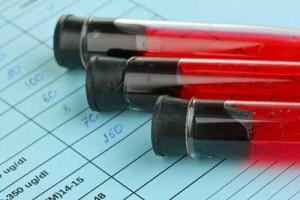 blood-tests