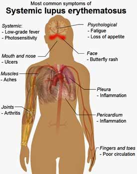 symptoms-SLE