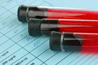 blood-test-dopamine