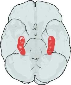 hippocampus fibromyalgia