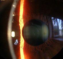 cornea fibromyalgia