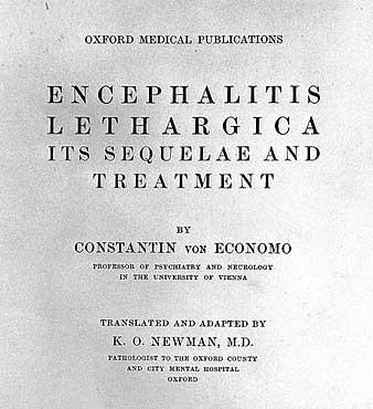 Encephalitis lethargica