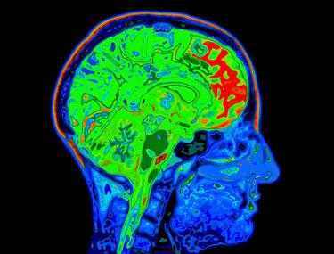 central nervous system fibromyalgia