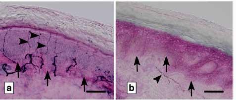 Diagnosing Fibromyalgia The Small Nerve Fiber Way