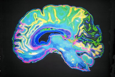 coloured-mri-scanbrain
