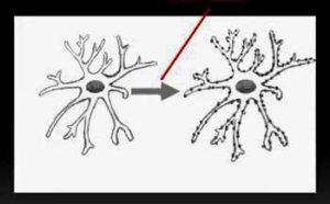 microglia activation in fibromyalgia