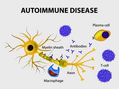 autoimmunity POT