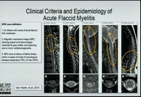 lipkin acute flaccid myelitis