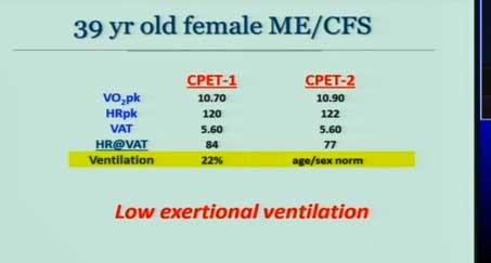 ventilation ME/CFS