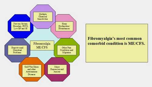fibromyalgia POTS