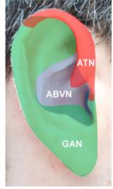 non-invasive VNS