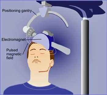 Novel Chronic Fatigue Syndrome (ME/CFS) Brain Stimulation Clinical Trial Begins